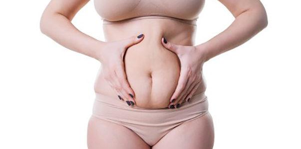 Jak wygrać walkę z cellulitem? – Dobry krem na cellulit