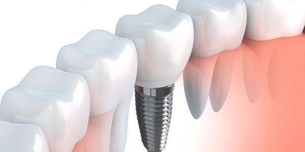 Implanty zębowe – sposób na zdrowy i piękny uśmiech