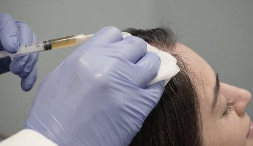 hamowanie wypadania włosów